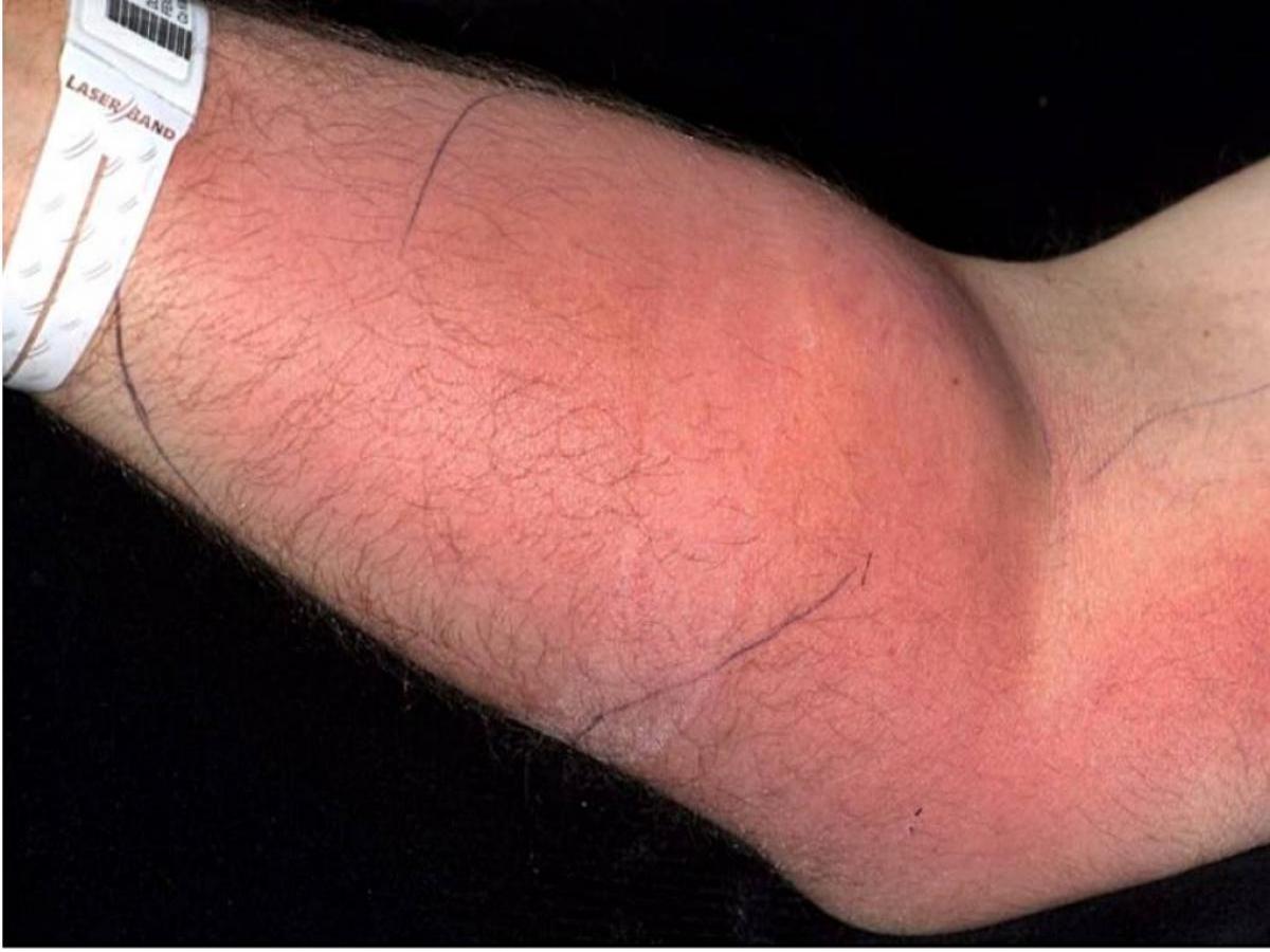 """Homem injeta 18 """"doses"""" de seu próprio sêmen no braço para tentar curar dor nas costas"""